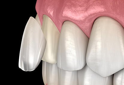 6 facts you need to know about veneer and crown - DRHC Dubai Dental Clinic