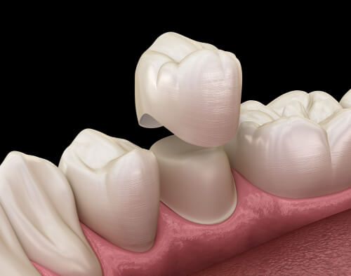 6 facts you need to know about veneer and crowns - DRHC Dubai Dental Clinic