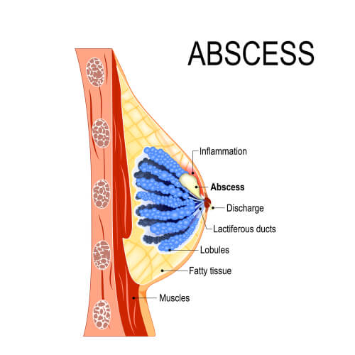 Breast Abscess Treatment Dubai DRHC