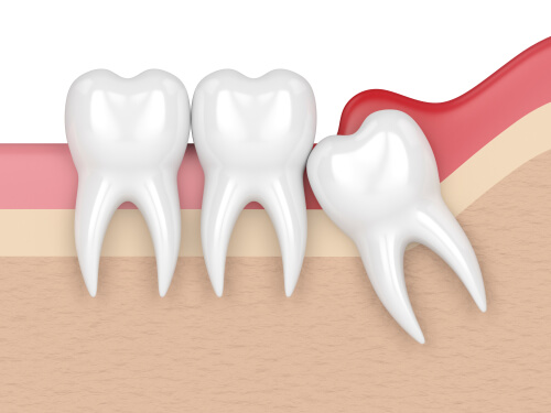 Pericoronitis in dentistry