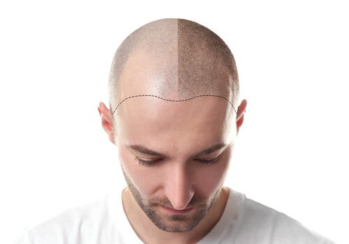 Why choose DRHC for your hair transplant