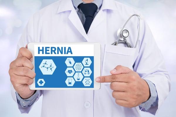 Open versus endoscopic Hernia repair.
