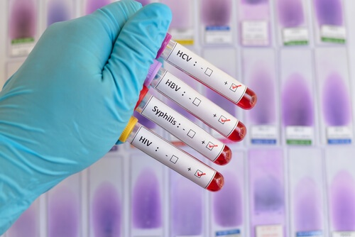 STD same day testing, advantages and accuracy