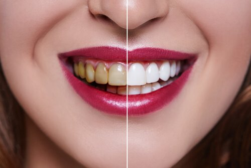 Differences in tooth preparation between a veneer & a crown