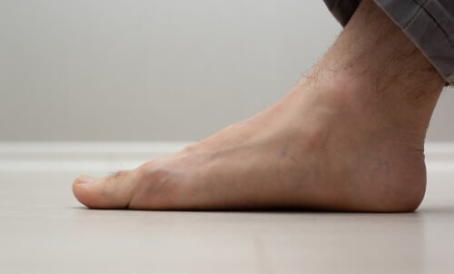 Home exercises for flat feet