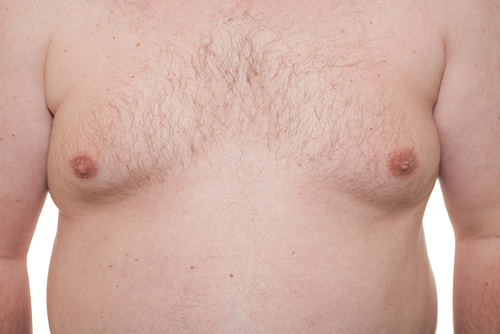Gynaecomastia (Male breasts, Man boobs) : Causes and Treatment